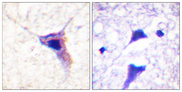 Immunohistochemistry analysis of paraffin-embedded human brain, using Synapsin1 (Phospho-Ser62) Antibody. The picture on the right is blocked with the phospho peptide.