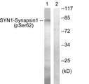 Western blot analysis of lysates from HeLa cells treated with Anisomycin 25ug/ml 30', using Synapsin1 (Phospho-Ser62) Antibody. The lane on the right is blocked with the phospho peptide.