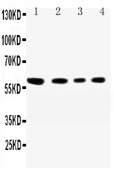 SYNCAM / CADM1 Antibody - WB of SYNCAM / CADM1 antibody. All lanes: Anti-CADM1 at 0.5ug/ml. Lane 1: A549 Whole Cell Lysate at 40ug. Lane 2: JURKAT Whole Cell Lysate at 40ug. Lane 3: RAJI Whole Cell Lysate at 40ug. Lane 4: HELA Whole Cell Lysate at 40ug. Predicted bind size: 60KD. Observed bind size: 60KD.