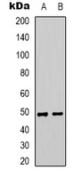 SYNCAM / CADM1 Antibody - Western blot analysis of CADM1 expression in A549 (A); HEK293T (B) whole cell lysates.