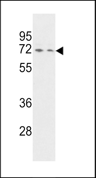 Western blot of HNRPQ Antibody in HeLa and Jurkat cell line lysates (35 ug/lane). HNRPQ (arrow) was detected using the purified antibody.
