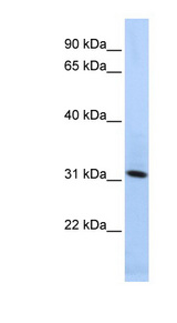 SYNGR4 / Synaptogyrin 4 Antibody - SYNGR4 / Synaptogyrin 4 antibody Western blot of HepG2 cell lysate. This image was taken for the unconjugated form of this product. Other forms have not been tested.