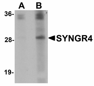 Western blot of SYNGR4 in K562 cell lysate with SYNGR4 antibody at (A) 1 and (B) 2 ug/ml.