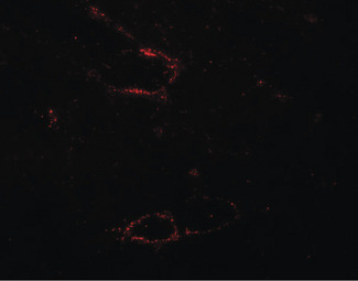 Immunofluorescence of SYNPO2L in mouse skeletal muscle tissue with SYNPO2L antibody at 20 ug/ml.