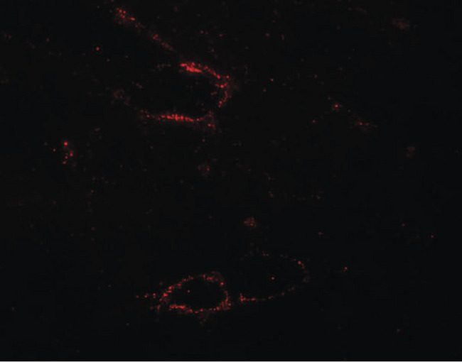 SYNPO2L Antibody - Immunofluorescence of SYNPO2L in mouse skeletal muscle tissue with SYNPO2L antibody at 20 ug/ml.