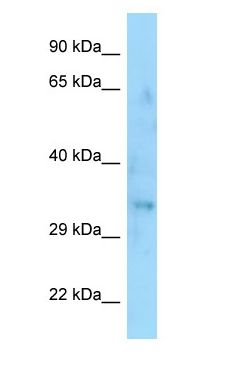 SYPL1 antibody Western Blot of Fetal Thymus.  This image was taken for the unconjugated form of this product. Other forms have not been tested.