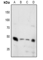 SYT1 + SYT2 Antibody - Western blot analysis of Synaptotagmin (pT202/199) expression in K562 (A), HEK293T (B), U87MG (C), A549 (D) whole cell lysates.