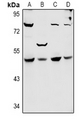 Western blot analysis of SYT11 expression in Hela (A), A549 (B), CT26 (C), PC12 (D) whole cell lysates.