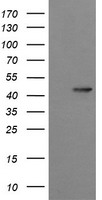 SYT4 Antibody - HEK293T cells were transfected with the pCMV6-ENTRY control (Left lane) or pCMV6-ENTRY SYT4 (Right lane) cDNA for 48 hrs and lysed. Equivalent amounts of cell lysates (5 ug per lane) were separated by SDS-PAGE and immunoblotted with anti-SYT4.