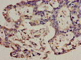 Immunohistochemistry analysis of human pancreatic cancer at a dilution of 1:100