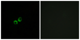 Immunofluorescence analysis of MCF7 cells, using TAS1R3 Antibody. The picture on the right is blocked with the synthesized peptide.