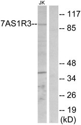 Western blot analysis of lysates from Jurkat cells, using TAS1R3 Antibody. The lane on the right is blocked with the synthesized peptide.