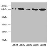 Western blot All Lanes: TAS1R3antibody at 1.48ug/ml Lane 1: K562 whole cell lysate Lane 2: HL60 whole cell lysate Lane 3: Jurkat whole cell lysate Lane 4: Hela whole cell lysate Lane 5: HepG-2 whole cell lysate Secondary Goat polyclonal to rabbit IgG at 1/10000 dilution Predicted band size: 93 kDa Observed band size: 93 kDa