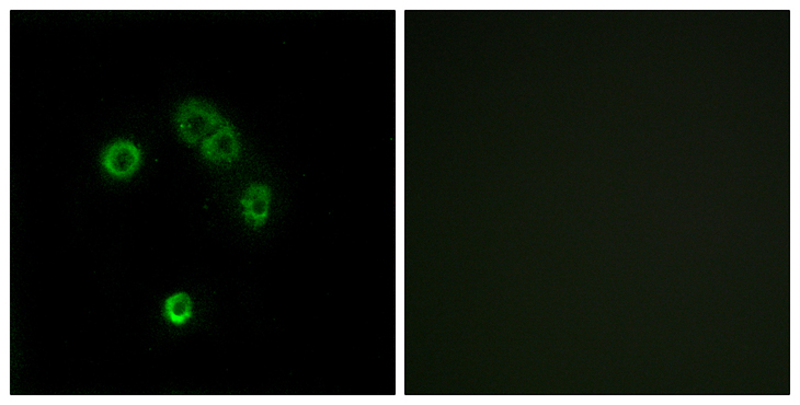 T2R13 / TAS2R13 Antibody - Immunofluorescence analysis of MCF7 cells, using TAS2R13 Antibody. The picture on the right is blocked with the synthesized peptide.