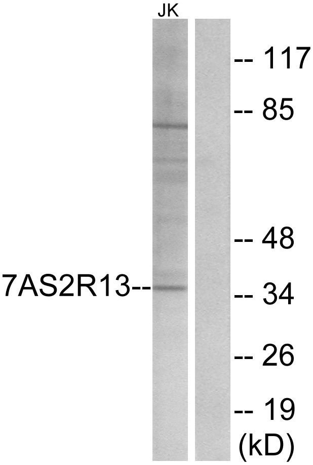 T2R13 / TAS2R13 Antibody - Western blot analysis of lysates from Jurkat cells, using TAS2R13 Antibody. The lane on the right is blocked with the synthesized peptide.