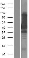 TAB1 Protein - Western validation with an anti-DDK antibody * L: Control HEK293 lysate R: Over-expression lysate