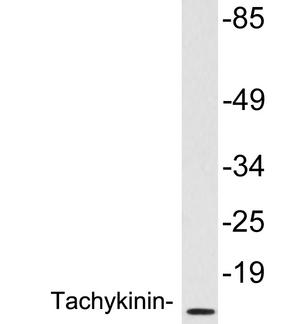 Western blot of extracts from brain tissue, using Tachykinin antibody.