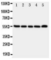 Anti-TACR1 antibody, Western blotting All lanes: Anti TACR1 at 0.5ug/ml Lane 1: A549 Whole Cell Lysate at 40ug Lane 2: U87 Whole Cell Lysate at 40ug Lane 3: COLO320 Whole Cell Lysate at 40ug Lane 4: SCG Whole Cell Lysate at 40ug Lane 5: PANC Whole Cell Lysate at 40ug Predicted bind size: 45KD Observed bind size: 55KD