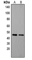 TACR1 / NK1R Antibody - Western blot analysis of Tachykinin Receptor 1 expression in COLO205 (A); mouse brain (B) whole cell lysates.