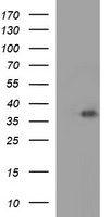 HEK293T cells were transfected with the pCMV6-ENTRY control (Left lane) or pCMV6-ENTRY EPCAM (Right lane) cDNA for 48 hrs and lysed. Equivalent amounts of cell lysates (5 ug per lane) were separated by SDS-PAGE and immunoblotted with anti-EPCAM.
