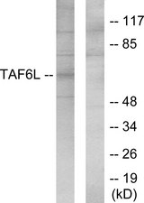Western blot analysis of lysates from 293 cells, using TAF6L Antibody. The lane on the right is blocked with the synthesized peptide.