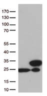 TAGLN2 / Transgelin 2 Antibody - HEK293T cells were transfected with the pCMV6-ENTRY control. (Left lane) or pCMV6-ENTRY TAGLN2. (Right lane) cDNA for 48 hrs and lysed. Equivalent amounts of cell lysates. (5 ug per lane) were separated by SDS-PAGE and immunoblotted with anti-TAGLN2. (1:500)