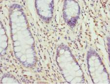 TAGLN2 / Transgelin 2 Antibody - Immunohistochemistry of paraffin-embedded human colon cancer tissue at dilution 1:100