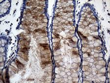 TANK Antibody - Immunohistochemical staining of paraffin-embedded Human colon tissue within the normal limits using anti-TANK mouse monoclonal antibody. (Heat-induced epitope retrieval by 1mM EDTA in 10mM Tris buffer. (pH8.5) at 120°C for 3 min. (1:500)