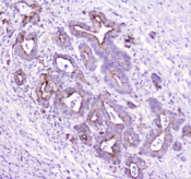 TANK Antibody - IHC staining of FFPE human cholangiocarcinoma with TANK antibody at 1ug/ml. HIER: boil tissue sections in pH6, 10mM citrate buffer, for 10-20 min followed by cooling at RT for 20 min.