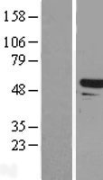 TAPBPL / TAPBPR Protein - Western validation with an anti-DDK antibody * L: Control HEK293 lysate R: Over-expression lysate