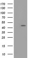 TASP1 Antibody - HEK293T cells were transfected with the pCMV6-ENTRY control (Left lane) or pCMV6-ENTRY TASP1 (Right lane) cDNA for 48 hrs and lysed. Equivalent amounts of cell lysates (5 ug per lane) were separated by SDS-PAGE and immunoblotted with anti-TASP1.