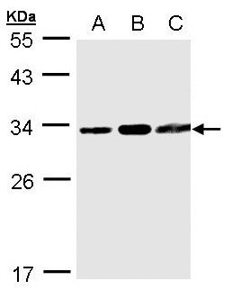 Sample (30 ug whole cell lysate). A:293T, B: A431, C: MOLT4 . 12% SDS PAGE. TATDN1 antibody diluted at 1:1000