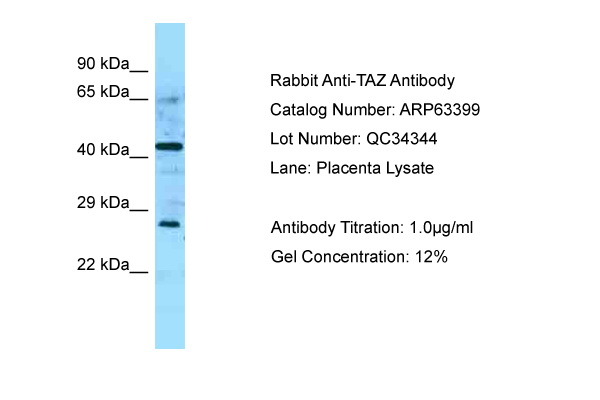 TAZ Antibody -  This image was taken for the unconjugated form of this product. Other forms have not been tested.