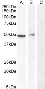 TBC1D10C / CARABIN Antibody - TBC1D10C / CARABIN antibody (0.5µg/ml) staining of Jurkat (A), (0.3ug/ml) PBM (B) and negative control A431 (C) cell lysate (35µg protein in RIPA buffer). Detected by chemiluminescence.