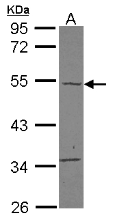 TBC1D10C / CARABIN Antibody - Sample (30 ug of whole cell lysate) A: A431 10% SDS PAGE TBC1D10C antibody diluted at 1:500