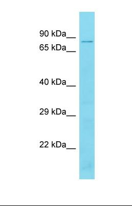 Western blot of Mouse Thymus. Tbc1d17 antibody dilution 1.0 ug/ml.  This image was taken for the unconjugated form of this product. Other forms have not been tested.