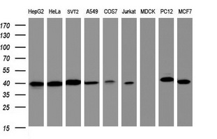Western blot of extracts (35ug) from 9 different cell lines by using anti-TBCC monoclonal antibody (HepG2: human; HeLa: human; SVT2: mouse; A549: human; COS7: monkey; Jurkat: human; MDCK: canine; PC12: rat; MCF7: human).
