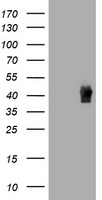HEK293T cells were transfected with the pCMV6-ENTRY control (Left lane) or pCMV6-ENTRY TBCC (Right lane) cDNA for 48 hrs and lysed. Equivalent amounts of cell lysates (5 ug per lane) were separated by SDS-PAGE and immunoblotted with anti-TBCC.