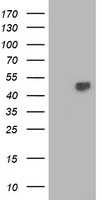 HEK293T cells were transfected with the pCMV6-ENTRY control (Left lane) or pCMV6-ENTRY TBCEL (Right lane) cDNA for 48 hrs and lysed. Equivalent amounts of cell lysates (5 ug per lane) were separated by SDS-PAGE and immunoblotted with anti-TBCEL.
