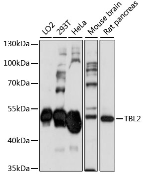 TBL2 Antibody - Western blot analysis of extracts of various cell lines, using TBL2 antibody at 1:1000 dilution. The secondary antibody used was an HRP Goat Anti-Rabbit IgG (H+L) at 1:10000 dilution. Lysates were loaded 25ug per lane and 3% nonfat dry milk in TBST was used for blocking. An ECL Kit was used for detection and the exposure time was 90s.