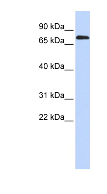 TBR1 antibody LS-C109596 Western blot of Fetal Brain lysate.  This image was taken for the unconjugated form of this product. Other forms have not been tested.