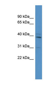 TBX10 antibody Western blot of Mouse Brain lysate. This image was taken for the unconjugated form of this product. Other forms have not been tested.