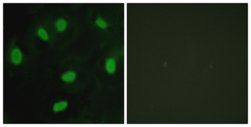 TBX15+18 Antibody - Immunofluorescence analysis of HeLa cells, using TBX15/18 Antibody. The picture on the right is blocked with the synthesized peptide.