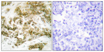 TBX15+18 Antibody - Immunohistochemistry analysis of paraffin-embedded human breast carcinoma tissue, using TBX15/18 Antibody. The picture on the right is blocked with the synthesized peptide.