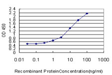 Detection limit for recombinant GST tagged TBX2 is approximately 0.3 ng/ml as a capture antibody.