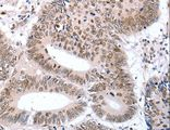 Immunohistochemistry of paraffin-embedded Human colon cancer using TBX2 Polyclonal Antibody at dilution of 1:32.