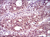 IHC of paraffin-embedded cervical cancer tissues using T mouse monoclonal antibody with DAB staining.