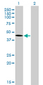 Western Blot analysis of T expression in transfected 293T cell line by T monoclonal antibody (M01), clone 5H8.Lane 1: T transfected lysate(41.1 KDa).Lane 2: Non-transfected lysate.