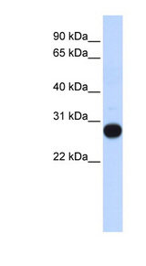TCEAL4 antibody LS-C102358 Western blot of Fetal Muscle lysate.  This image was taken for the unconjugated form of this product. Other forms have not been tested.