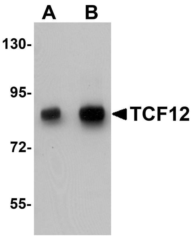 Western blot analysis of TCF12 in HeLa cell lysate with TCF12 antibody at (A) 0.5 and (B) 1 ug/ml.